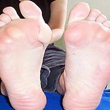 Бурсит стопы: причины, симптомы и методы лечения