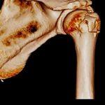 Перелом большого бугорка плечевой кости: причины, виды и методы лечения