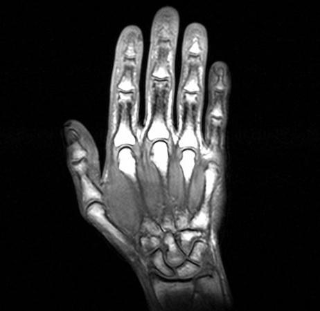 Что показывает МРТ кисти