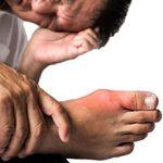 Острый приступ подагры: неотложная помощь и что делать