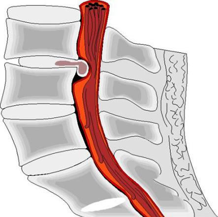 Дорсальная протрузия межпозвонковых дисков