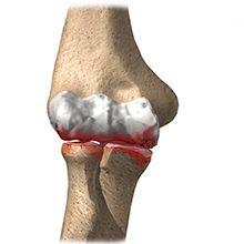 Артроз локтевого сустава: симптомы, диагностика и лечение
