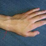 Стилоидит шиловидного отростка лучевой кости: что это, симптомы и лечение
