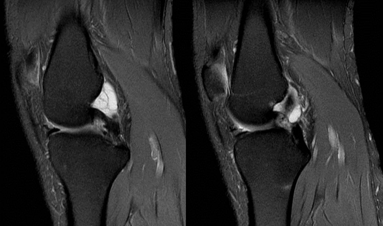Ганглий колена на МРТ