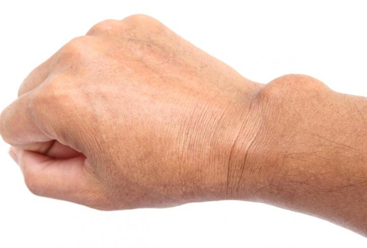 Ганглий на руке