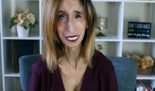Женщина с синдромом Марфана
