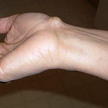 Гигрома лучезапястного сустава кисти: причины, методы диагностики и лечения