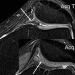 Cиндром медиопателлярной складки коленного сустава: что это, симптомы, диагностика и лечение