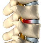 Грыжа грудного отдела позвоночника: симптомы, диагностика и лечение