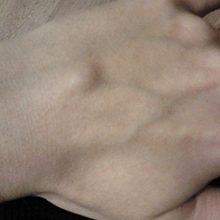 Если на кисти руки под кожей образовался шарик: что это может быть и что делать