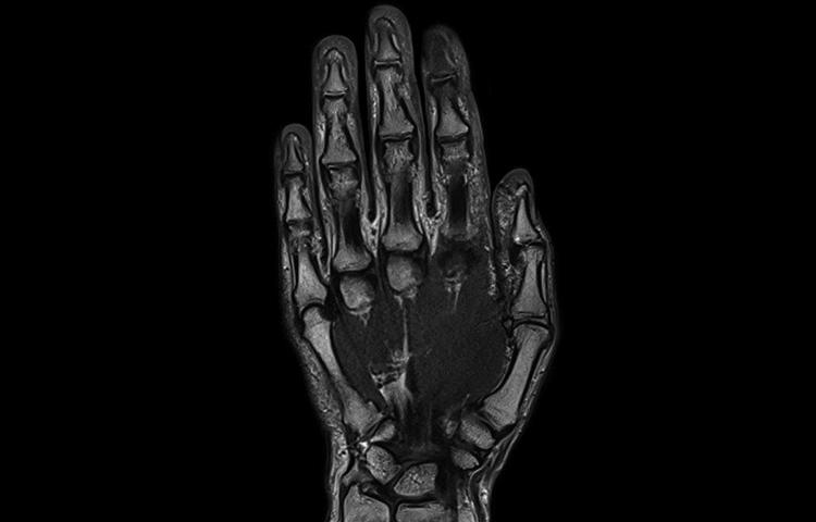 Как выглядит кисть на МРТ