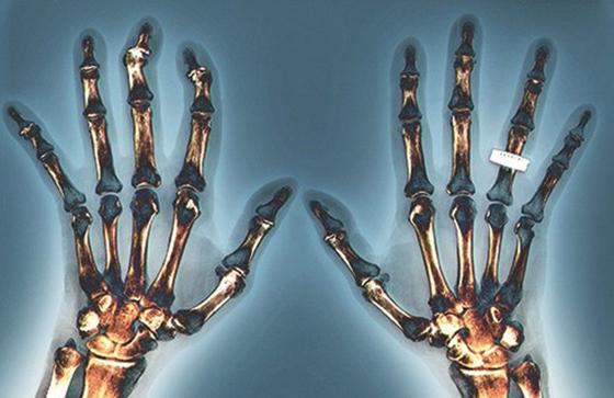 Как выглядит серопозитивный ревматоидный артрит