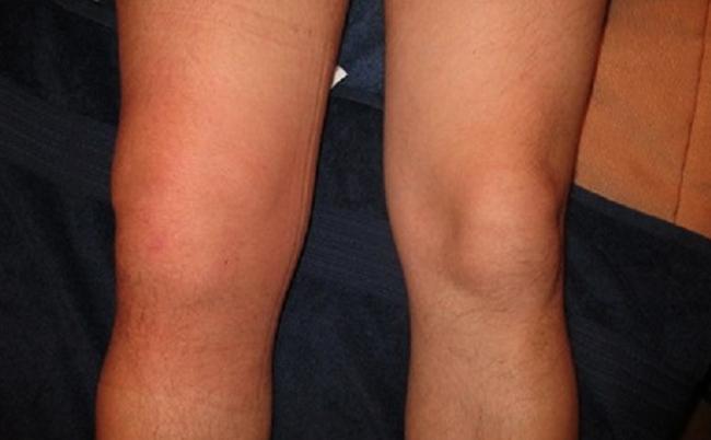 Изображение - Гонит коленного сустава симптомы и лечение kakv_gon