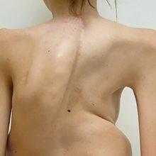 Кифосколиоз грудного отдела позвоночника: причины, симптомы и лечение
