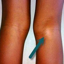 Киста коленного сустава: виды, симптомы и лечение
