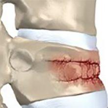 Компрессионный перелом позвоночника: что это, симптомы, последствия и лечение