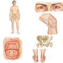 Болезнь Рейтера у мужчин и женщин — симптомы, диагностика и лечение