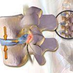 Секвестрированная грыжа позвоночника: что это, причины, симптомы и лечение