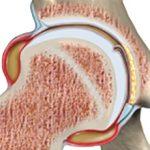 Транзиторный синовит тазобедренного сустава у детей: причины, симптомы и как лечить