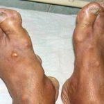 Наросты на пальцах ног: причины появления и как избавиться
