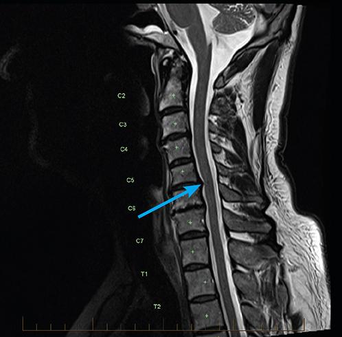 Радикулопатия шейного отдела позвоночника на МРТ