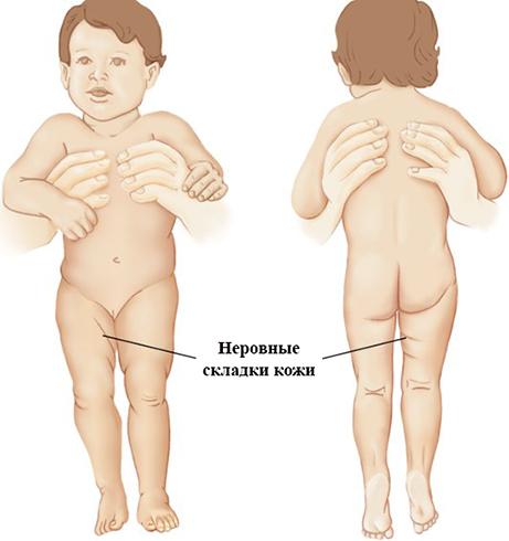 Неровные складки кожи