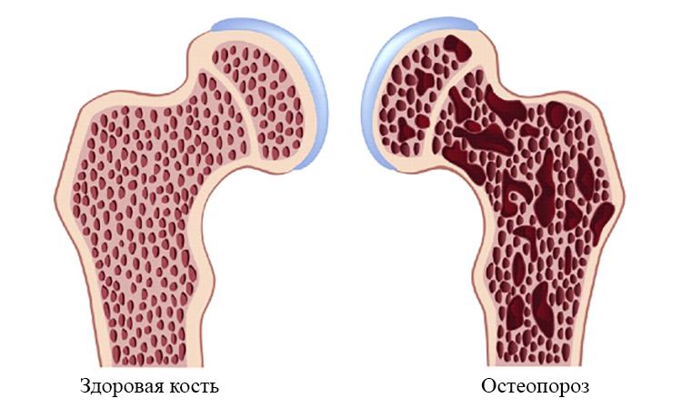 Норма и остеопороз