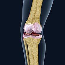 Остеопороз коленного сустава: причины, симптомы и лечение