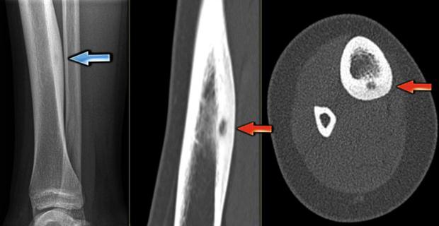 Остеоидная остеома