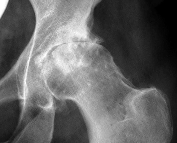 Рентген таза при остеопорозе