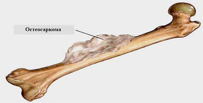 Остеосаркома