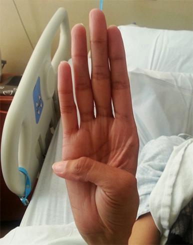 «Паучьи пальцы»