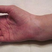 Перелом запястья: виды, симптомы, сколько носить гипс