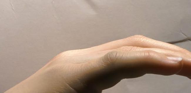 Как выглядит перелом мизинца