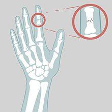 Перелом пальца руки: симптомы, диагностика и лечение