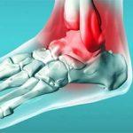 Периартрит голеностопного сустава — виды, симптомы и методы лечения