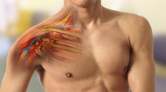 Плечевая плексопатия