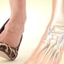 Порваны связки на ноге: симптомы, диагностика и лечение