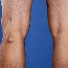 Синовиальная киста подколенной ямки: что это, симптомы и лечение