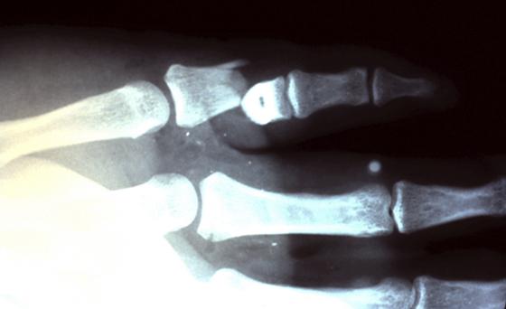 Рентген мизинца