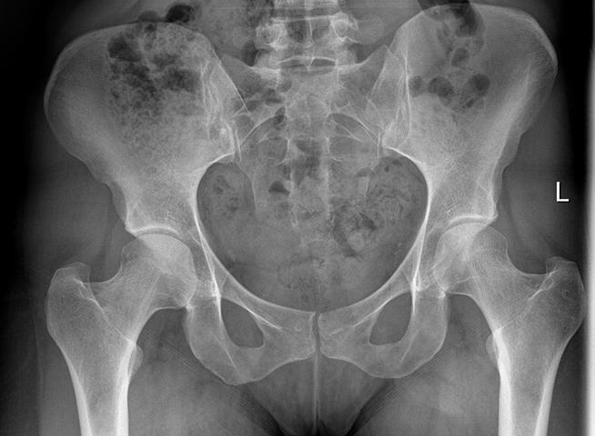 Рентген таза