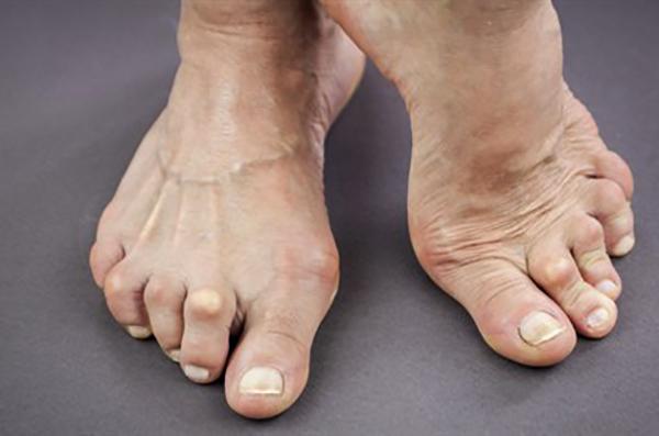 Артроз на ногах