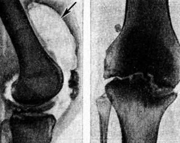Изображение - Гонит коленного сустава симптомы и лечение rent_kol