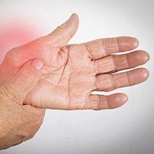 Обострение ревматоидного артрита — чем это опасно, симптомы и что делать