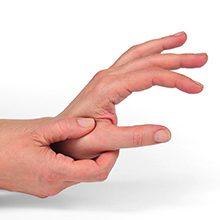 Ризартроз (артроз большого пальца руки): симптомы, диагностика и лечение