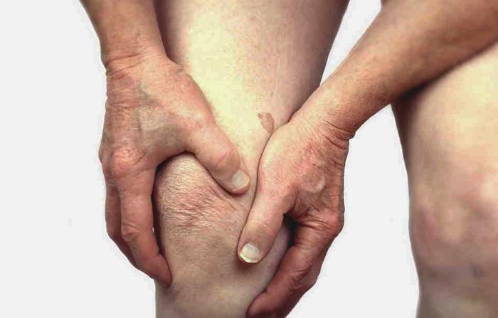 Симптом серонегативного ревматоидного артрита в колене