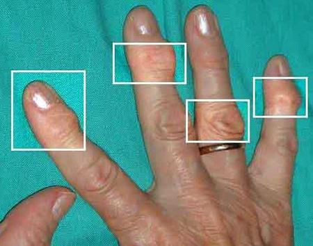 Симптомы артроза пальцев
