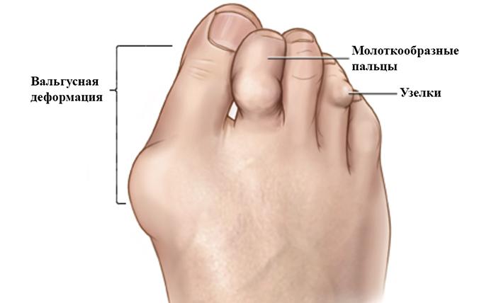 Изображение - Остеоартроз суставов стопы 2 степени siim12-3
