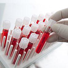 Анализы на ревматоидный артрит: виды и как сдавать