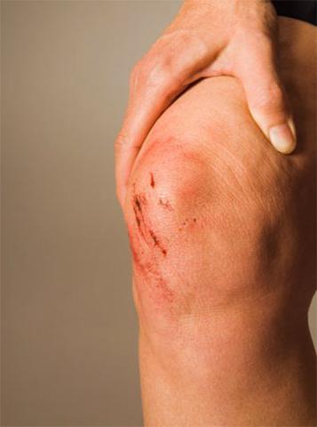 Симптомы трещины в колене